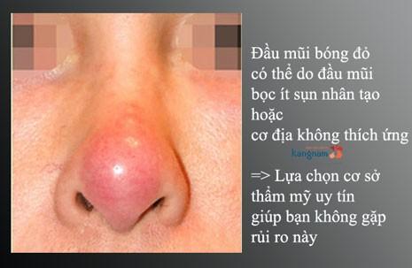 nâng mũi bọc sụn vẫn bị đỏ đầu mũi