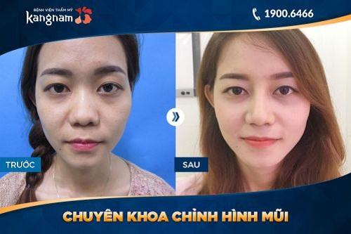 Phẫu thuật nâng mũi s line 3d là gì