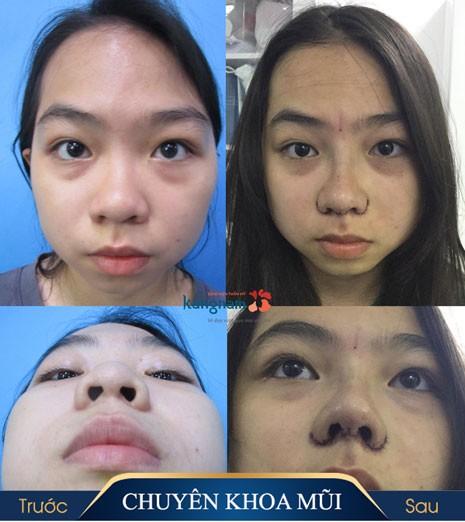 cuộn cánh mũi có ảnh hưởng gì không