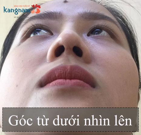 thu nhỏ đầu mũi Kangnam