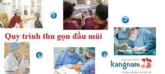 Quy trình thu nhỏ đầu mũi tại Kangnam