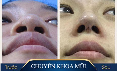 Phẫu thuật thu nhỏ đầu mũi