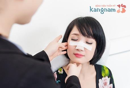 Phẫu thuật thu gọn đầu mũi kangnam