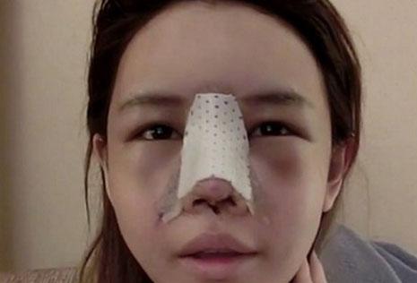 nâng mũi có ảnh hưởng đến mắt không