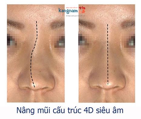 mũi bị lệch sau khi nâng