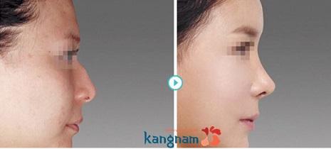 giá sửa mũi gồ
