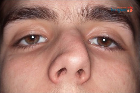 nâng mũi bị lệch webtretho