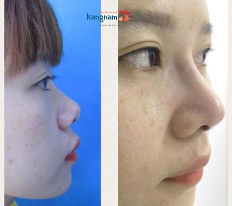 nâng mũi bán cấu trúc dựng trụ tại Kangnam