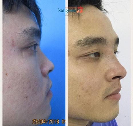 trước và sau khi nâng mũi nam giới