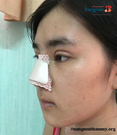nâng mũi sau bao lâu thì được trang điểm