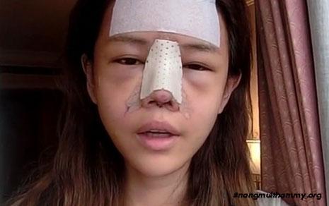nâng mũi bị kéo mắt phải làm sao