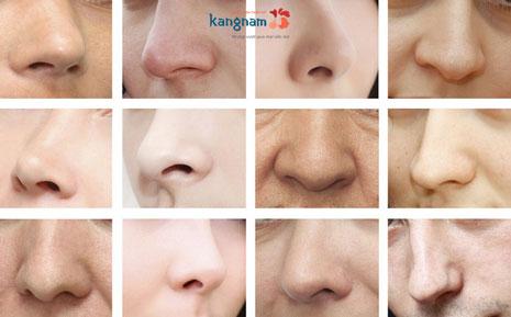 nâng mũi bằng sụn tai có tốt không
