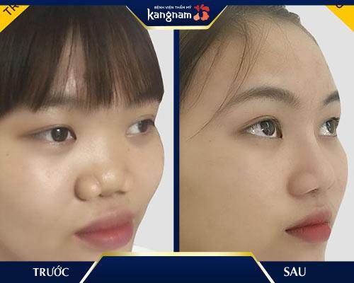 bảng giá nâng mũi kangnam 2018