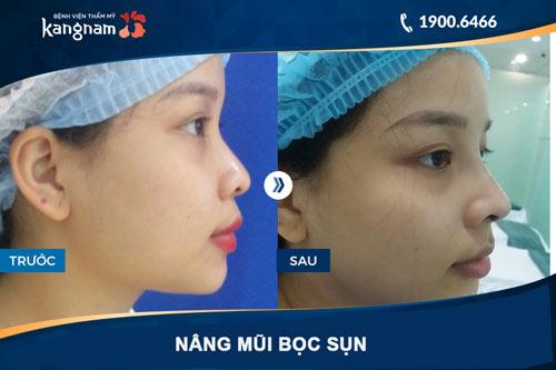 hình ảnh nâng mũi bọc sụn ở Kangnam