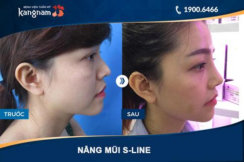hình ảnh nâng mũi s line ở BVTM kangnam