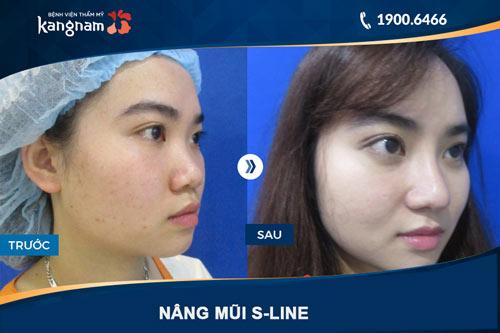 hình ảnh nâng mũi s line tại kangnam