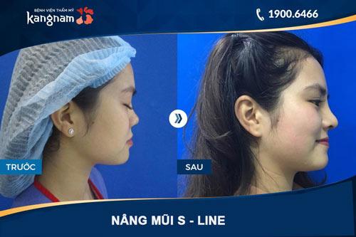 hình ảnh nâng mũi s line