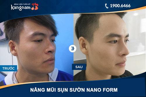 hình ảnh nâng mũi cho nam giới