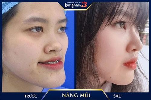 mũi thấp tẹt thông thường