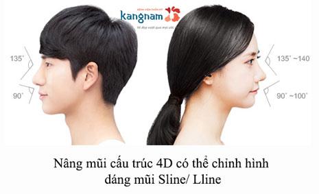 nâng mũi cấu trúc sline