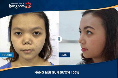 Phẫu thuật nâng mũi kangnam