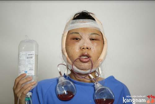 Quá trình hồi phục của Nguyễn Hoàng Oanh