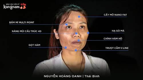Nguyễn Hoàng Oanh hành trình lột xác phẫu thuật thẩm mỹ