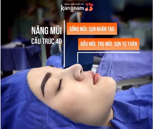 phẫu thuật nâng mũi