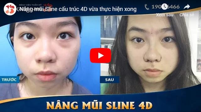 Video nâng mũi cấu trúc 4d Kangnam
