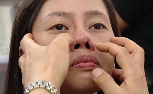 cách trị nghẹt mũi khi ngủ