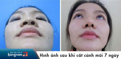 cắt cánh mũi bao lâu lành