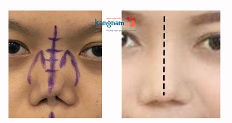hình ảnh mũi bị gãy