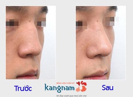 nâng mũi không phẫu thuật giá bao nhiêu