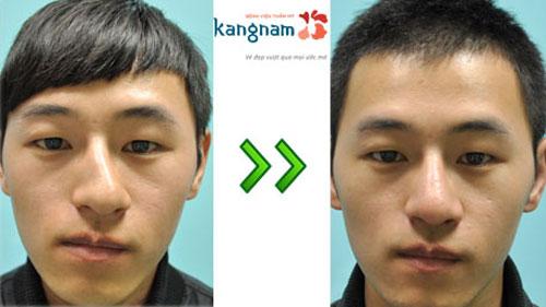 viêm mũi dị ứng có chữa khỏi được không