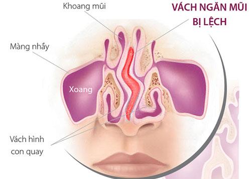 Bệnh vviêm mũi dị ứng mãn tính