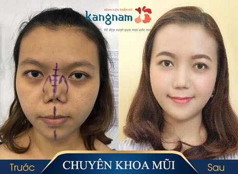 bác sĩ thẩm mỹ mũi giỏi ở Kangnam