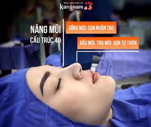 bệnh viện kangnam sài gòn