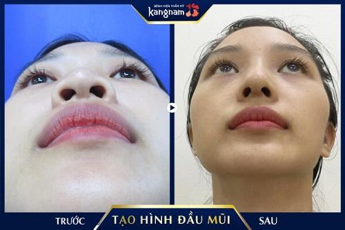 cách thu nhỏ đầu mũi tại nhà kangnam