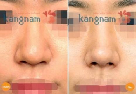 làm nhỏ đầu mũi không phẫu thuật
