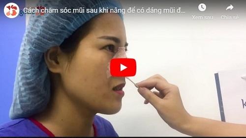 Video phẫu thuật nâng mũi cấu trúc 4d tại Kangnam