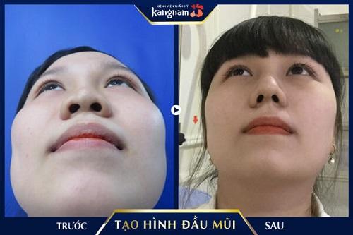 thu nhỏ đầu mũi không phẫu thuật kangnam