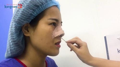 chi phí nâng mũi s line