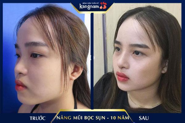 kangnam nâng mũi bọc sụn được bao nhiêu năm