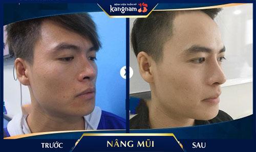 nâng mũi s line 3d kangnam