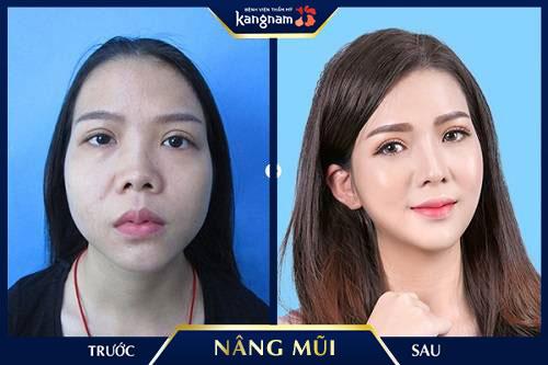 app chỉnh sửa mũi cao kangnam