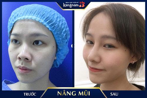app chỉnh mũi cao kangnam