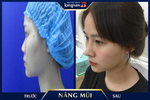 app nâng mũi kangnam