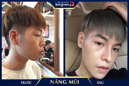 app sửa ảnh nâng mũi kangnam