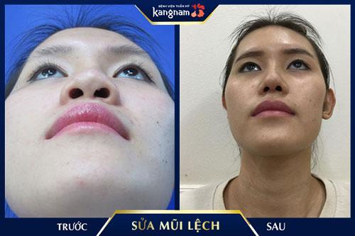 chỉnh mũi lệch kangnam