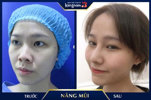 khách hàng nâng mũi kangnam
